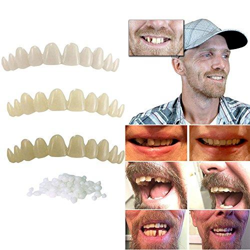 Enjocho Simulated Dental Braces-1Set Temporary Tooth Kit Natural Veneer Replace Missing Teeth Cover DIY Safe Easy (Multicolor)