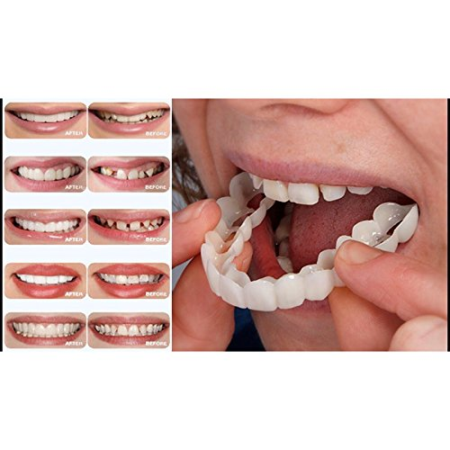 Leoie Teeth Whitening Teeth Snap Cosmetic Denture Easy Wear Tooth Socket Braces