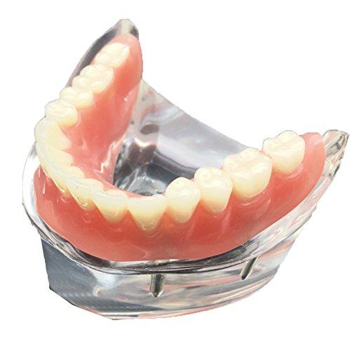 Gracefulvara Dental Overdenture with 4 Implants Restoration Teeth Study Teaching Model