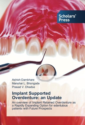 Implant Supported Overdenture: an Update: An overview of Implant Retained Overdenture as a Rapidly Expanding Option for edentulous patients with Future Prospects