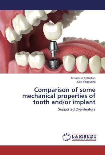 Comparison of some mechanical properties of tooth and/or implant: Supported Overdenture